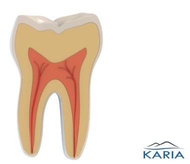 Endodontics (Root Canal)   Karia Dental